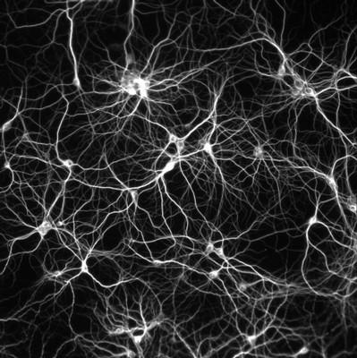 Le preoccupazioni per l'impatto dell'anestesia sul cervello