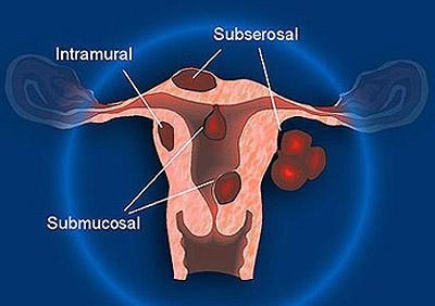 embolizzazione,fibroma uterino,GnRH