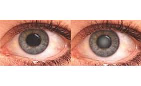 Antiossidante può curare cataratta e altre malattie degenerative degli occhi