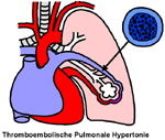 asma,embolia polmonare