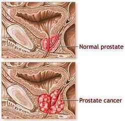 cancro alla prostata e salute mentale