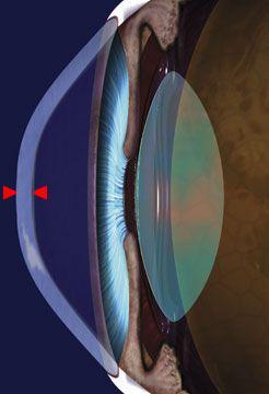 Amantadina, farmaco per il trattamento del Parkinson, può provocare edema corneale