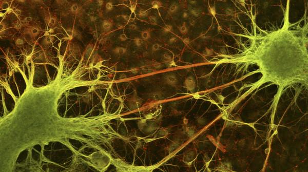 Le reti dei neuroni sono interrotte nelle malattie psichiatriche