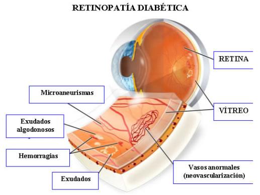 dopamina,retinopatia diabetica