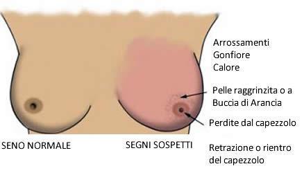 Scoperta proteina che favorisce la diffusione del cancro for Seni diversi