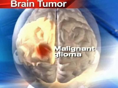 glioma maligno