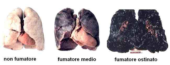 dopo quanti anni si puliscono i polmoni migliore pulizia per il tuo corpo