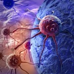cancro,NMT enzima