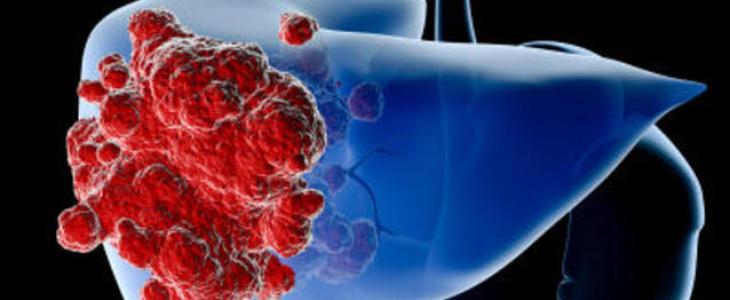 Un derivato della vitamina B3 può prevenire il cancro del fegato