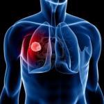 cancro al polmone