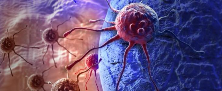 Due terzi dei tumori causati da mutazioni casuali del DNA
