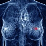 cancro al seno,tamoxifene
