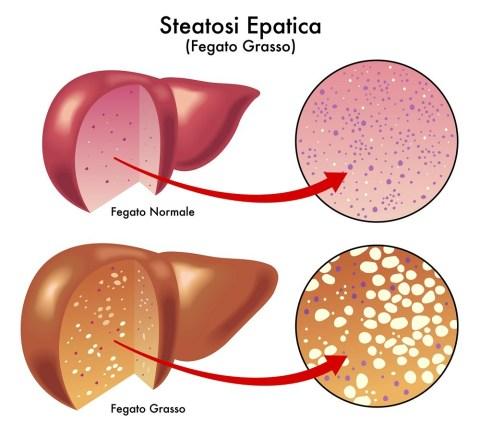 malattia del fegato grasso