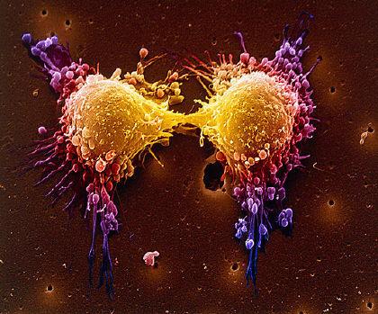 cancro,digiuno