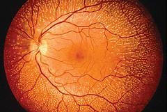 degenerazione retinica,terapia genica