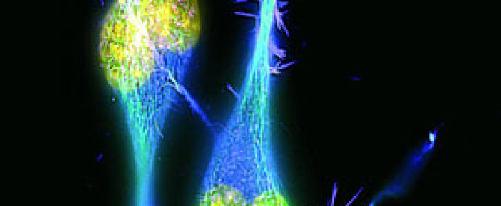 Huntington: nuovo test misura l'accumulo della proteina huntingtina mutata nel liquido spinale