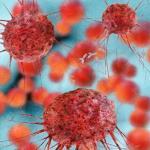 cancro al seno HER2 positivo