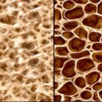 acido zoledronico,osteoporosi