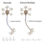 malattie autoimmuni,sclerosi multipla