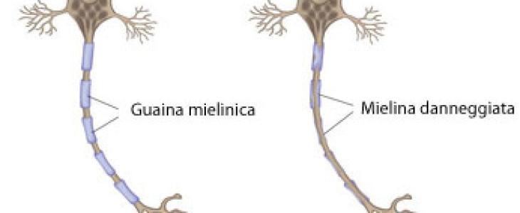 Perchè le donne sono più predisposte degli uomini alla sclerosi multipla