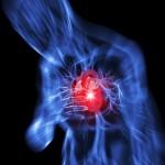 infarto,sistema linfatico