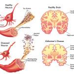 alzheimer,colesterolo