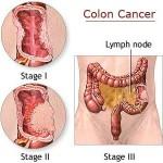 cancro del colon
