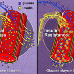 diabete tipo2