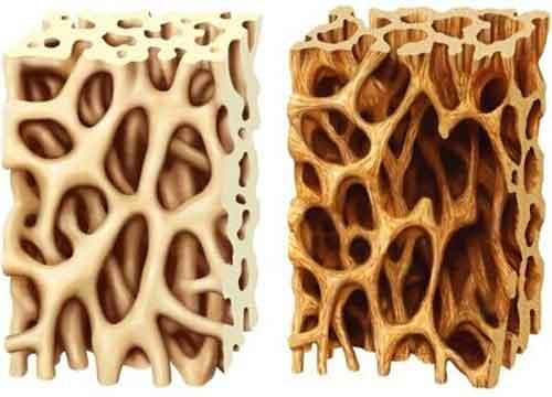 osteoporosi,soia