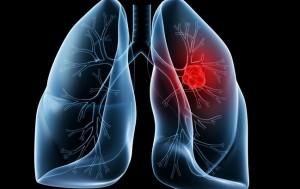 cancro al polmone non a piccole cellule