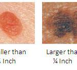 Registrato in tempo reale il raro evento dello sviluppo di un melanoma da una singola cellula