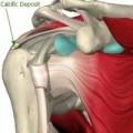 Perché la tendinite calcifica della spalla è così dolorosa?