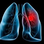 Identificato il responsabile del cancro al polmone