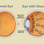 Il consumo di verdure ricche di nitrati allontana il rischio di glaucoma