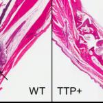 Da una proteina nuova cura per malattie infiammatorie