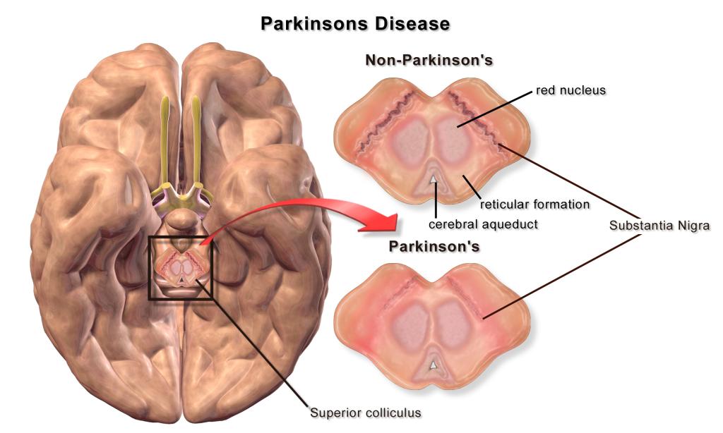 Parkinson: individuato il punto in cui la proteina alfa ...