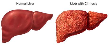 cirrosi epatica,fibrosi epatica