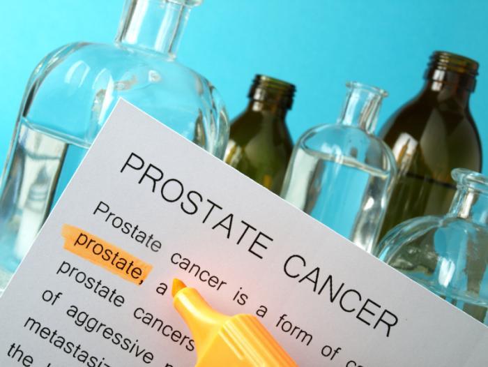 follow-up del trattamento con radiazioni per il cancro alla prostata