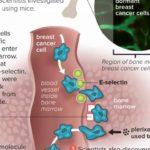 Individuata chiave molecolare utilizzata dal cancro al seno per eludere le terapie