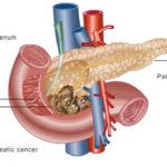 La vitamina A può rendere più efficace la chemioterapia nel cancro del pancreas