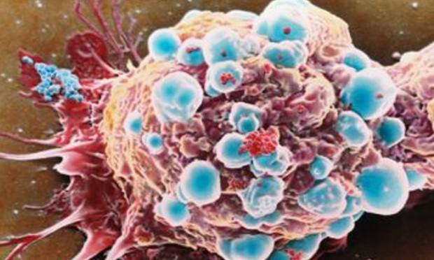 Sviluppato nuovo approccio non tossico per la cura di - Diversi tipi di seno ...