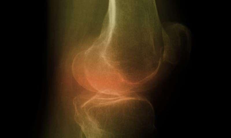 osteoatrite del ginocchio