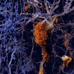 Alzheimer: in trial di fase III nuovo farmaco inibisce l'aggregazione Tau