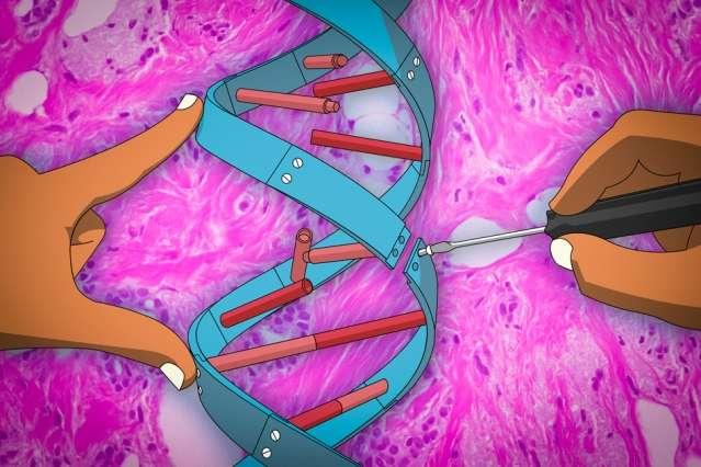 Cancro al seno: la terapia genica previene le metastasi