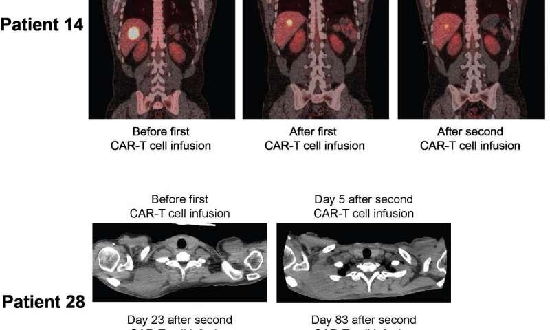 Pazienti con linfoma non Hodgkin avanzato in remissione dopo la terapia con cellule T