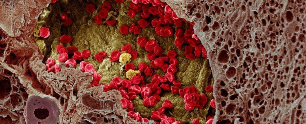 Importante passo avanti nella comprensione della diffusione del cancro nel corpo