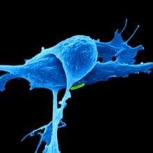 Studio rileva interpretazioni contrastanti nello screening del rischio di cancro