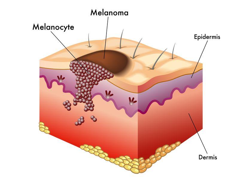 Individuato un farmaco che blocca la progressione del melanoma