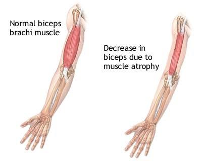 Ricerca dimostra che Deflazacort è un trattamento sicuro ed efficace per la distrofia muscolare di Duchenne