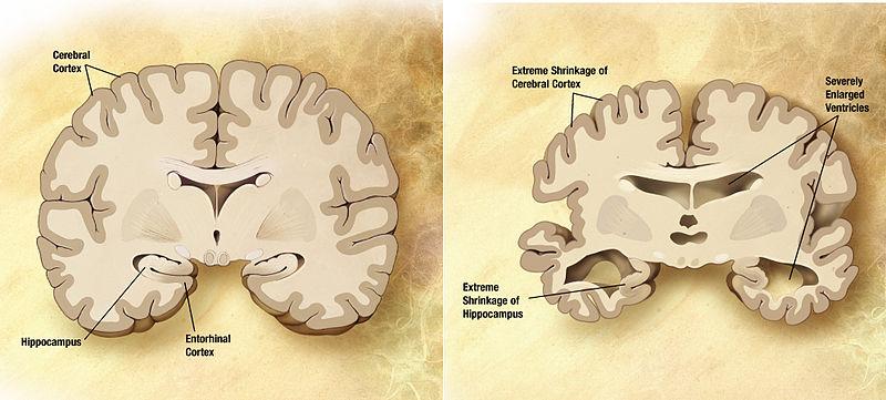Studio scopre nuova strategia per prevenire la malattia di alzheimer